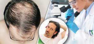 2021 Yılında En İyi Saç Ekimi Hangisi