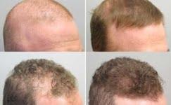 2021 Yılında Saç Ekimi Sonrası Nelere Dikkat Edilmeli