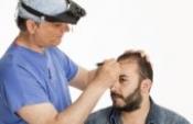Saç Ekimi Nasıl Yapılır? 5 Adımda Süreci Öğrenin