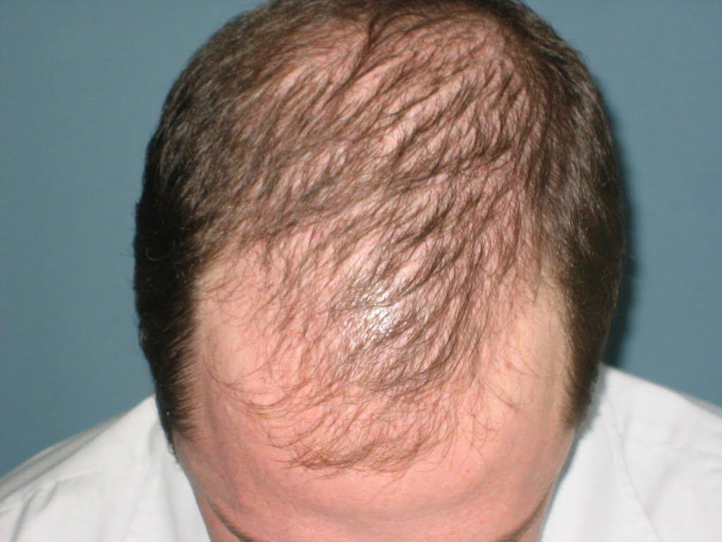Saç Ektirme Fiyatı Ne Kadar?