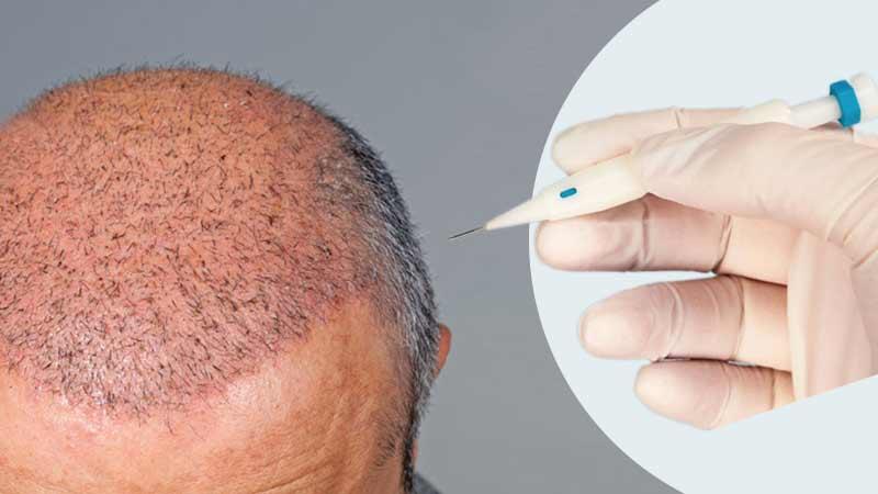 Saç Ekiminde Anestezi Nasıl Yapılır?