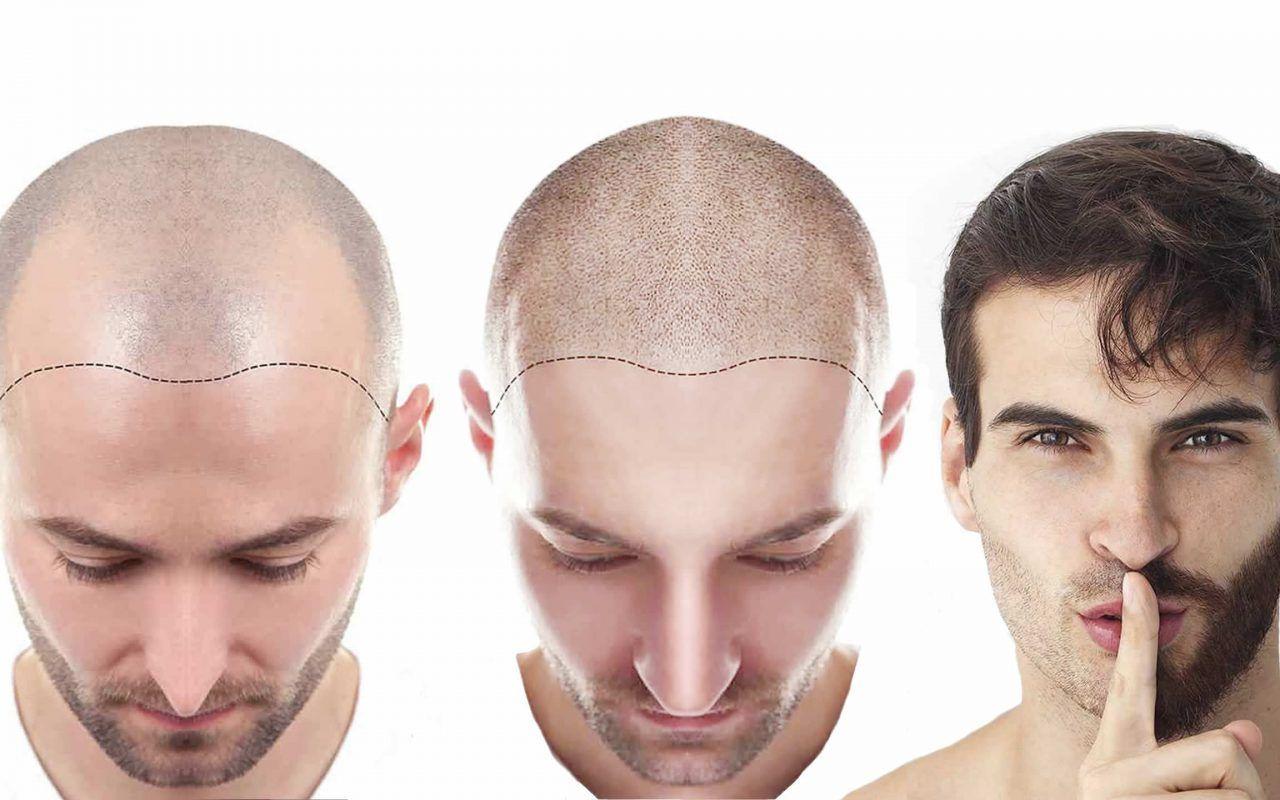 Saç Ekimine Abdest Engel Olur Mu?