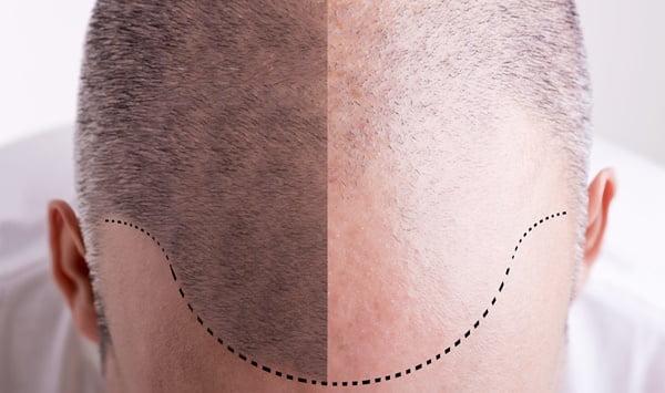 Lazerli Saç Ekimi Nedir?