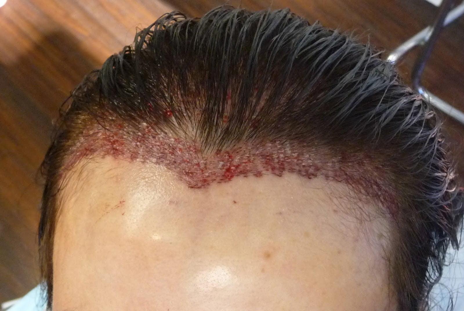 Saç Ekimi Sonrası Süreç Nasıl İşler?