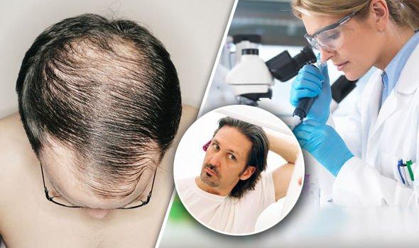 Saç Ektirmek Caiz Mi?