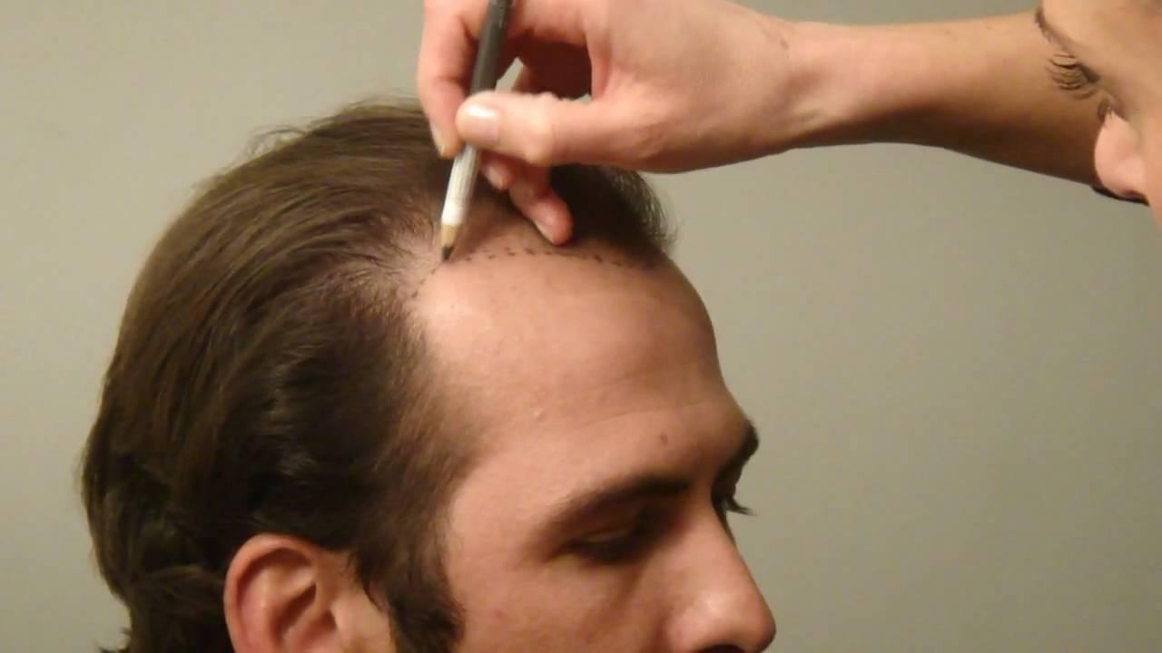Saç Ekim Tasarımı